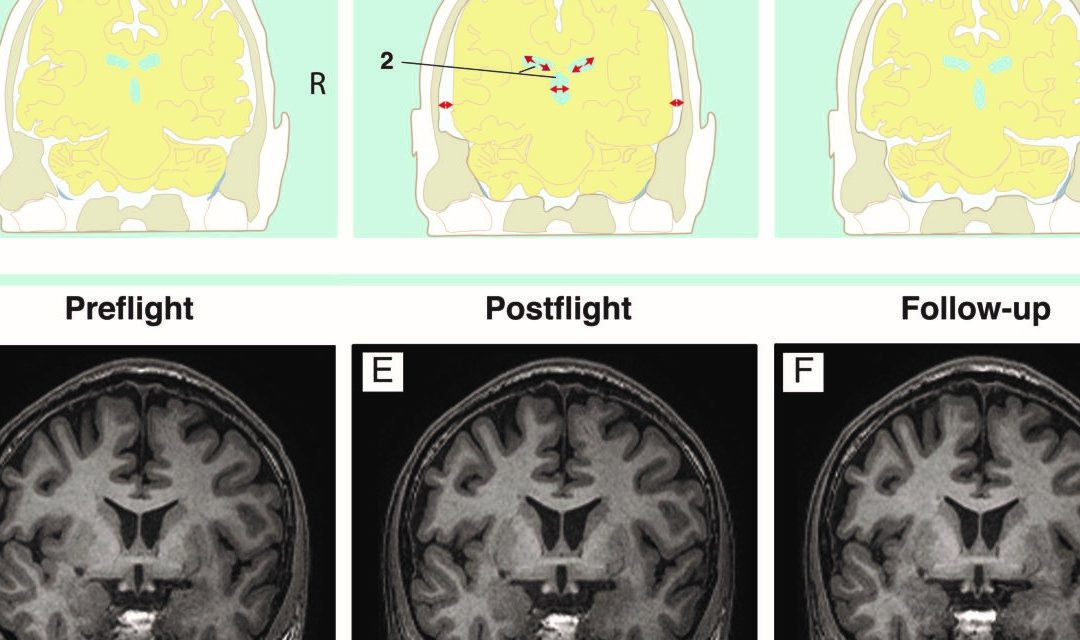 Viaggi spaziali, quali effetti sul cervello?